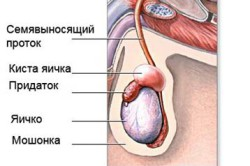 Схема кисты яичка