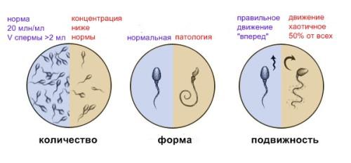 Пример оценки спермограммы
