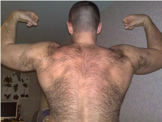 Избыток мужского тестостерона