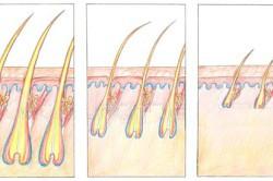 Истощение и выпадение волос
