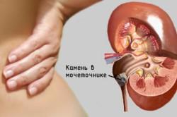 Обострение мочекаменной болезни