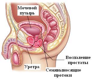 лечение обострений хронического простатита лекарствами