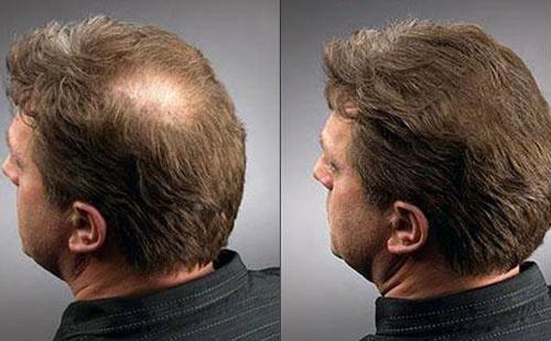 Восстановление волосяного покрова у мужчины