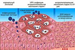Перерождение эпителия в раковые клетки под влиянием ВПЧ