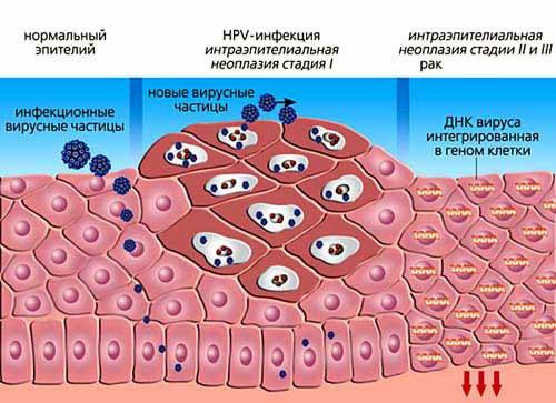 Как происходит удаление папилломы