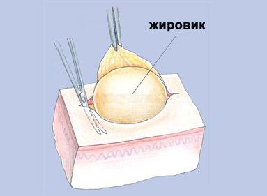 Вид жировика