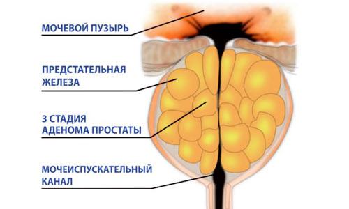 Аденома простаты третьей стадии
