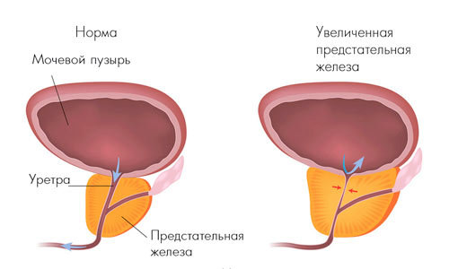 Лечение по стадиям гиперплазии предстательной железы