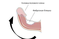 Лечение болезни Пейрони