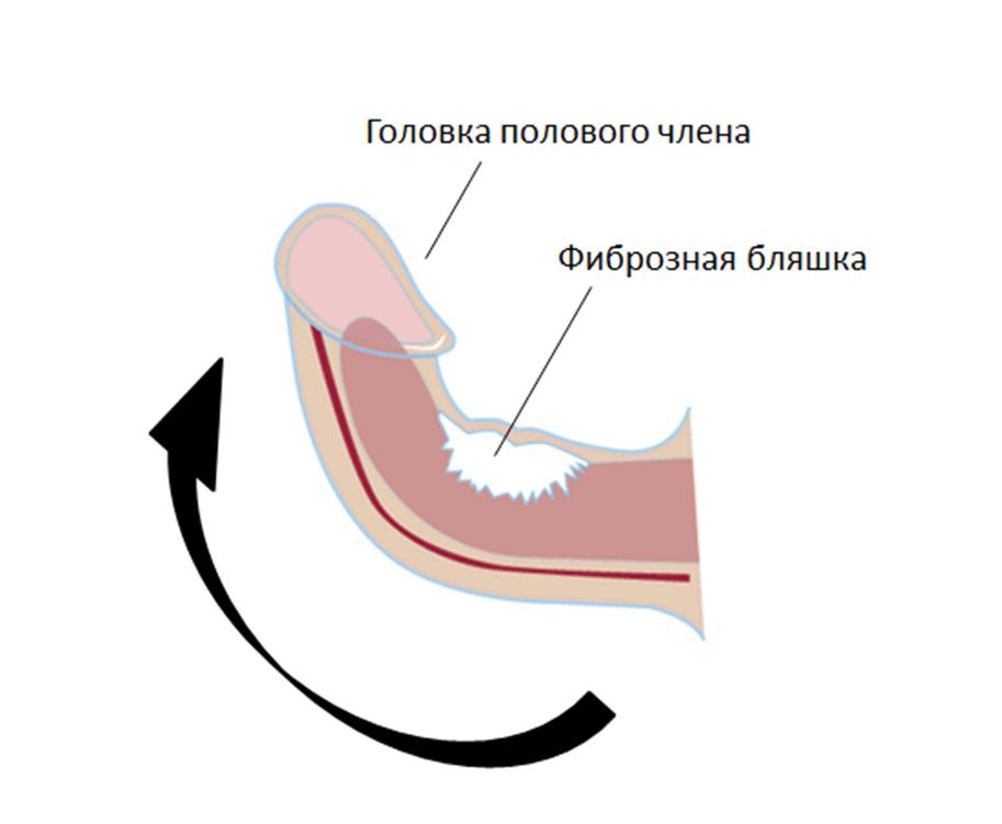 Разновидности мужского пениса