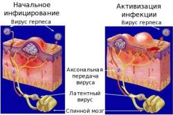 Механизм заражения человека герпесом