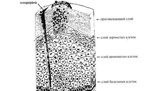 Морфологическая схема инфицирования эпидермиса ВПЧ