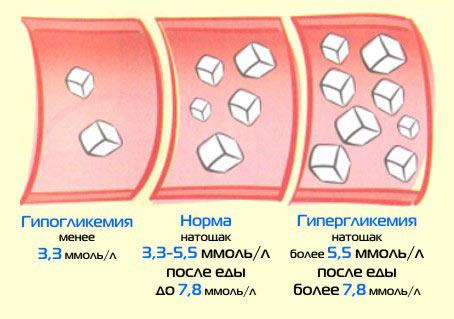 Гестационный диабет показание к кесарево