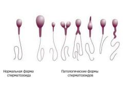 Морфологический рассмотрение сперматозоидов