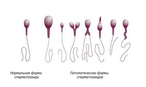 Формы развития сперматозоидов