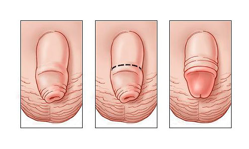 Как выглядит обрезание у мужчин фото: http://lifewithgemorroy.east-medicine.ru/article/256-kak_vygljadit_obrezanie_u_muzhchin_foto