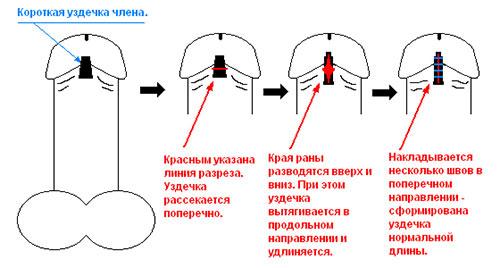 Операция на уздечку