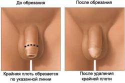 Описание обрезания новорожденного