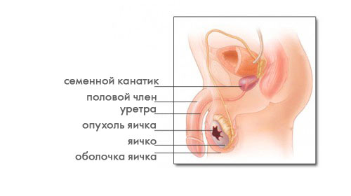 Опухоль яичка