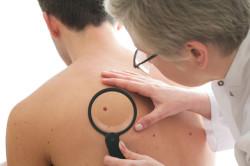 Обследование у дерматолога