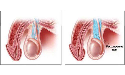 Расширение яичковых вен