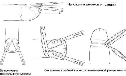 Схема обрезания крайней плоти