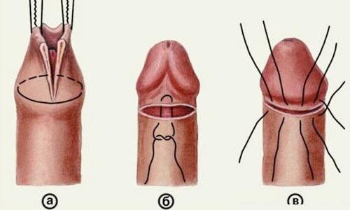 Мешает ли сексу головка члена не обрезаной плотью