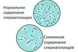 Содержание сперматозоидов