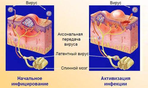 Вирус генитального герпеса
