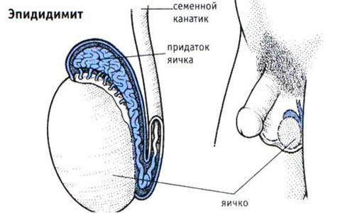 Возникновение эпидидимита
