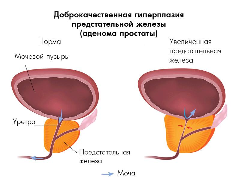 Народные средства от простатита и аденомы отзывы
