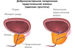 Доброкачественная гиперплазия простаты