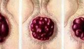 Боровая матенка пользу кого лечения различных заболеваний у мужчин