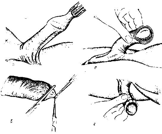 Обрезание крайней плоти казань