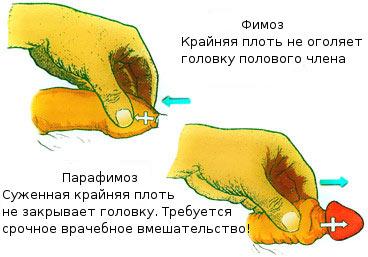 Трещины крайней плоти пениса