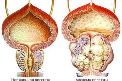 Применение препарата при аденоме простаты