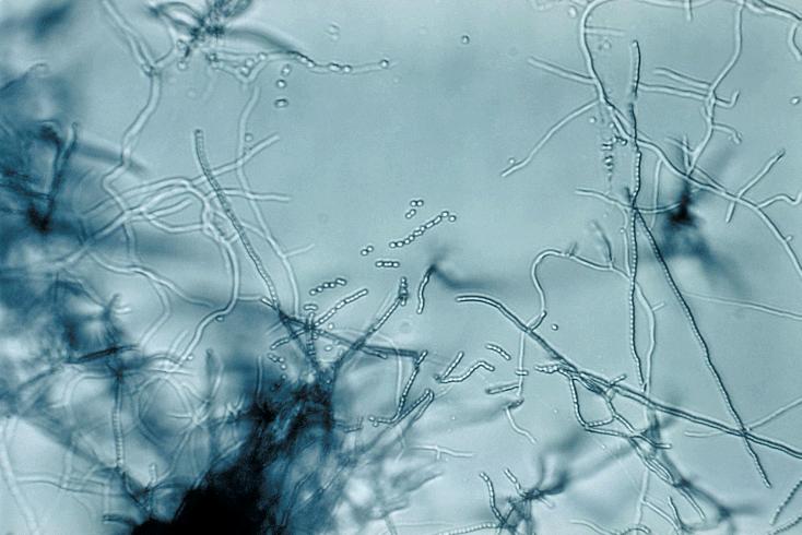 Причиной красных пятен может быть грибок