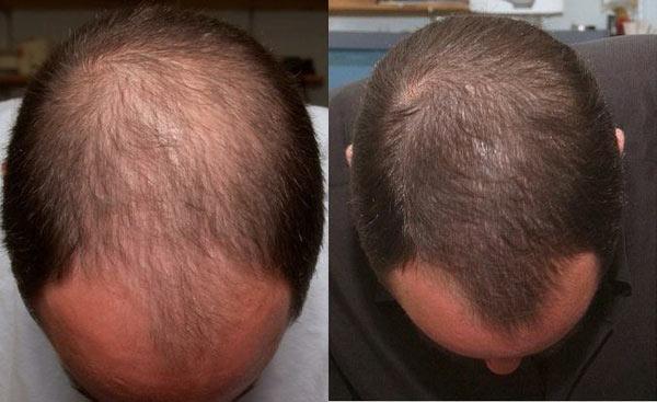 Отзывы репейного восстановления волос