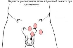Варианты расположения яичек при крипторхизме