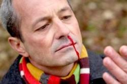 Частые кровотечения из носа признак низкого уровня тромбоцитов в крови