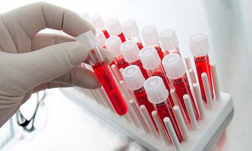 Анализ крови на реакцию оседания эритроцитов