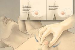Определение гинекомастии