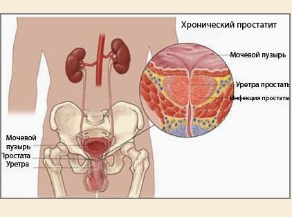 Диагностика простатита анализы, осмотр, обследования