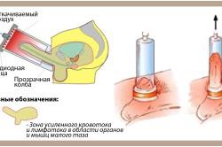 ЛОД-терапия