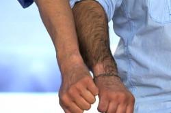 Обильный волосяной покров при избытке тестостерона