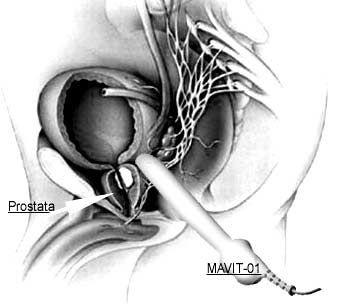 Лечение простатита физиопроцедурами