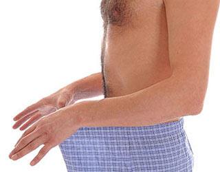 Развитие дерматита у мужчин
