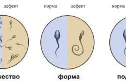 Характеристики спермограммы