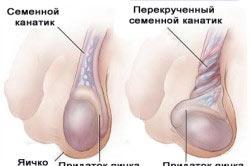 Сильная боль при перекруте яичка