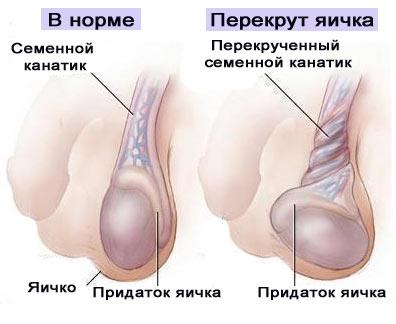 Боли в яичках и простатит